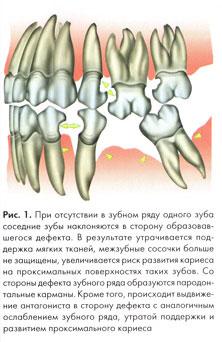 Ноют зубы при остеохондрозе